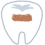 歯白くする,歯白く,自宅,自分,セルフ,消しゴム,黄ばみ,付着,白く,歯,100均,方法,歯を白くする方法